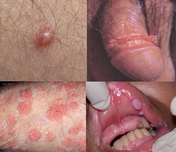 Papilloma of the penis