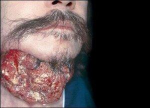 Câncer-de-Esôfago-1