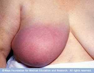 mama inflamada câncer de mama