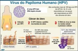 papiloma-vírus-hpv